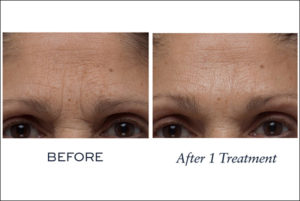 Biotec BAs 840x840Firm a Lift After 1 Treatment Forehead 2