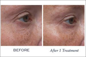 Biotec BAs 840x840Line Eraser After 1 Treatment Eye 2